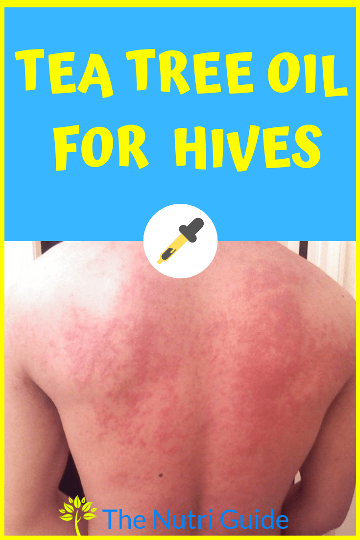 tea tree oil for hives