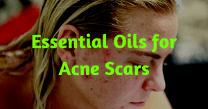 essential oils for acne scars 1