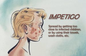 Essential Oils for Impetigo