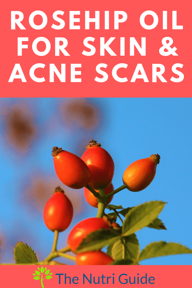 Rosehip Oil for Face & Acne Scars