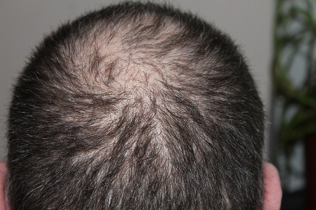 essential oils for balding