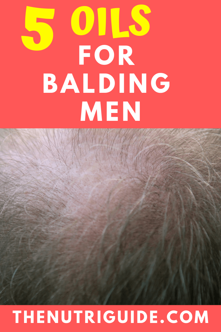 essential oils for balding men