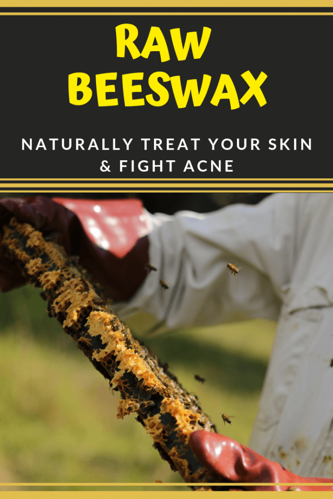raw beeswax for acne and skin care