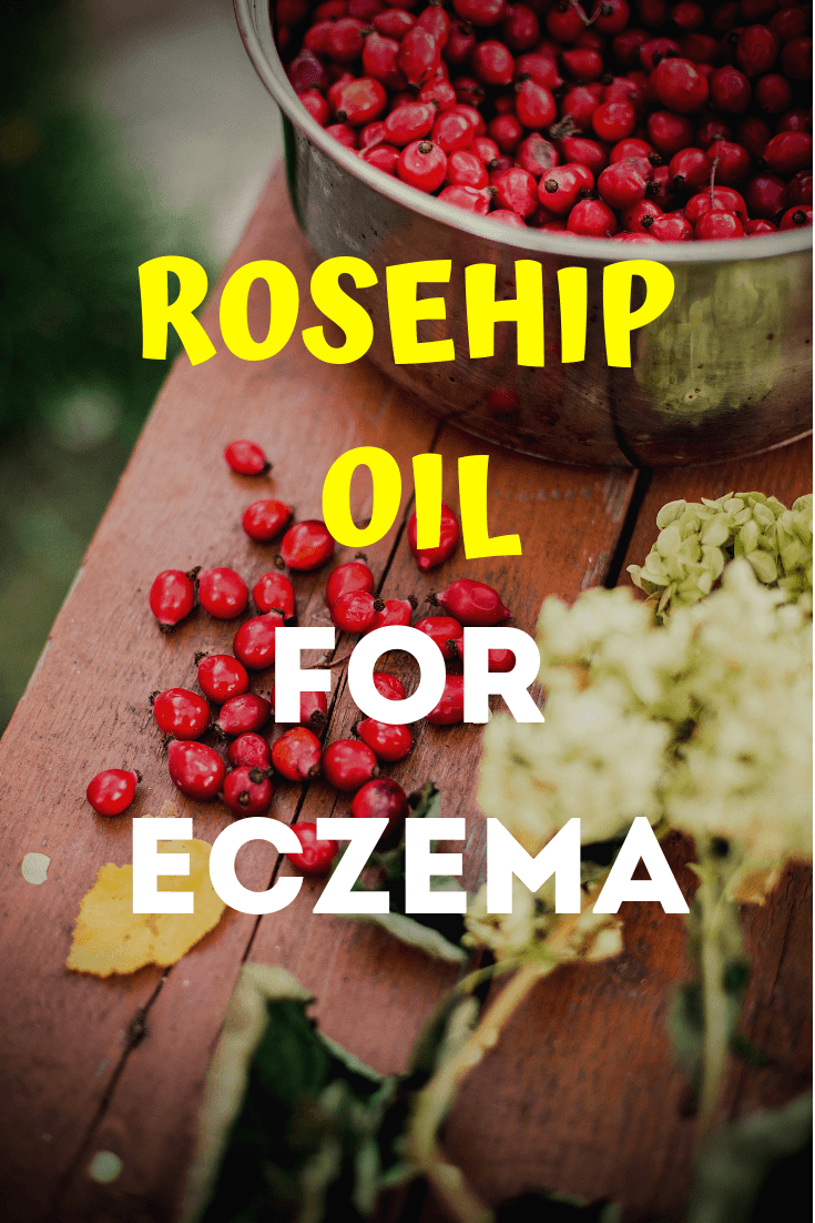 Rosehip Oil for Eczema 2