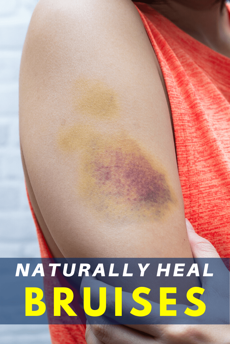 Naturally Heal Bruises