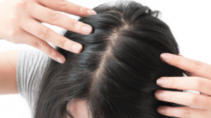 clove oil for hair growth