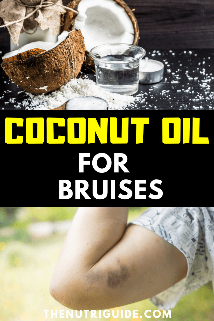 coconut oil for bruises