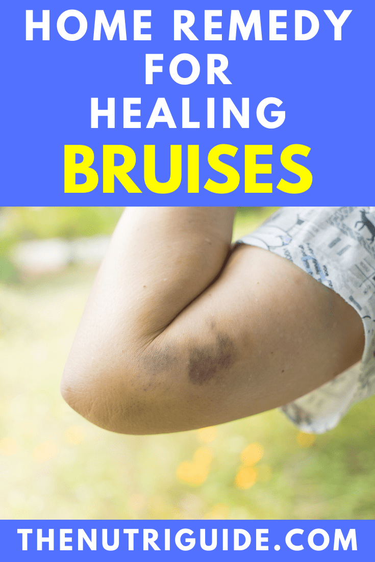 home remedy for healing bruises