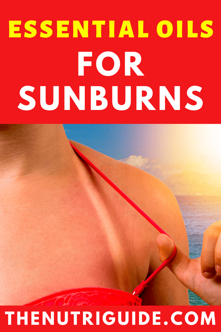 Essential Oils for Sunburns