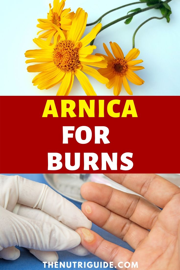 arinca for burns